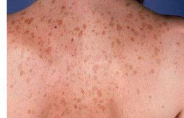 Маски и другие процедуры от коричневых пятен на коже